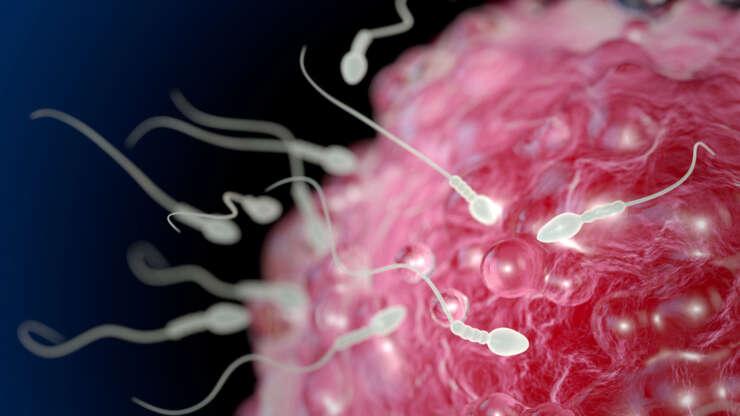 In vitro or IVF
